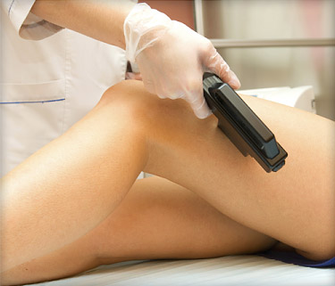 laser_hair_removal_ref_guide