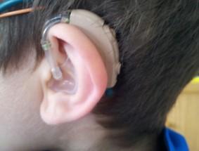 audifono_niño